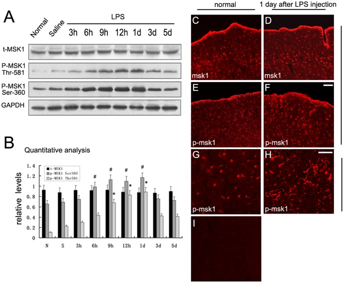 Expression profile of MSK1 and p-MSK1 (Thr-581 and Ser-360) following LPS intracerebral injection. A . Protein levels of t-MSK1, p-MSK1 Thr-581, p-MSK1 Ser-360 were detected before (control) and after injury. GAPDH was also detected by Western blotting. B . Quantification graphs (relative optical density) of the intensity of staining of p-MSK1 (Thr-581) and total MSK1 to GAPDH at each time point. GAPDH was used to confirm that equal amounts of protein were run on the gel. C–H . Immunofluorescence staining of MSK1 and p-MSk1 (Thr581) was performed to assess the staining changes for MSK1 and p-MSK1 immunoreactivity in the cortex at day 1 after LPS-injection. I . Negative control. * and # indicate significant differences at P