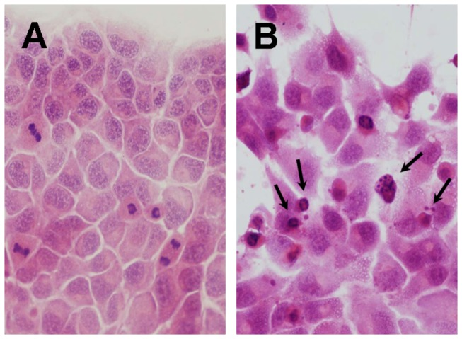 Photomicrograph of HAK-1B cells cultured for 72 hours on a Lab-Tek Chamber slide. (A) Without <t>PEG-IFN-α2a</t> in culture medium. (B) With 4,194 ng/mL of PEG-IFN-α2a in culture medium. Apoptotic cells (short arrows) characterized by cytoplasmic shrinkage, chromatic condensation and nuclear fragmentation were noted (HE staining, X 200).