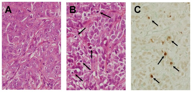 Photomicrograph of subcutaneous human HCC tumor in nude mice that was developed after the injection of HAK-1B cells. (A) A control mouse that received culture medium alone. The tumor shows a compact arrangement of tumor cells and a sinusoid-like structure in the stroma. (B) A mouse that received a s.c. injection of 0.06 μg of PEG-IFN-α2a. There are some apoptotic tumor-cells characterized by shrinkage and eosinophilic change in the cytoplasm, chromatin condensation and/or fragmentation of nuclei (arrows, HE staining, X200). (C) The same tumor as shown in (B). There are some TUNEL-positive cells showing brown nuclei (arrows, stained by the TUNEL technique, X200).