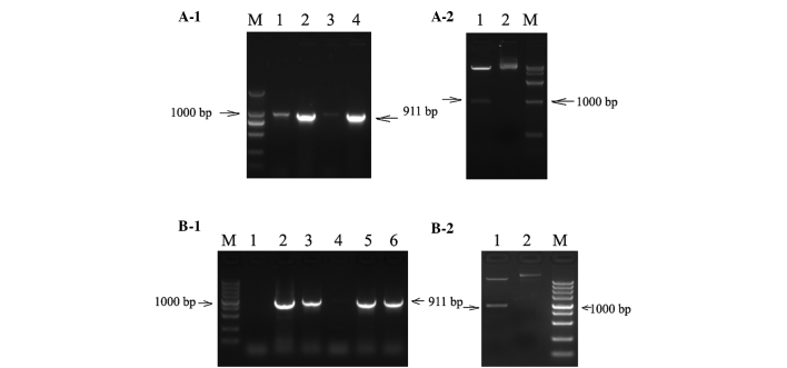 Identification of EGFP-labeled lentiviral expression vector. (A-1) Gel electrophoresis of the PCR product of pLenti6.3-EGFP-EGFR-miR. M, marker DL2000; lane 1, negative control; lanes 2–4, PCR product of recombinant vector (911 bp). (A-2) Restriction map of the PCR positive vector of pLenti6.3-EGFP-EGFR-miR. M, marker DL15000; lane 1, digestion product of double restriction endonuclease of Asc I and Pme I; lane 2, the recombinant plasmid pLenti6.3-EGFR-EGFR-miR. (B-1) Gel electrophoresis of the PCR product of pLenti6.3-EGFP-FGFR-miR. M, marker DL5000; lane 1, negative control; lanes 2–6, PCR product of recombinant vector (911 bp). (B-2) Restriction map of the PCR positive vector of pLenti6.3-EGFP-FGFR-miR. M, marker DL5000; lane 1, digestion product of double restriction endonuclease of AscI and PmeI; lane 2, the recombinant plasmid pLenti6.3-EGFP-FGFR-miR. EGFP, enhanced green fluorescent protein; EGFR, epithelial growth factor receptor; miR, microRNA; PCR, polymerase chain reaction; FGFR, fibroblast growth factor receptor.