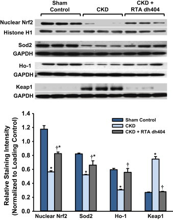 Effect of RTA dh404 on Nrf2, Nrf2 target, and Keap1 protein expression in aorta from CKD rats . Representative Western blots and group data are presented, depicting protein abundance of Nrf2, Nrf2 downstream gene products: superoxide dismutase 2 (Sod2) and heme oxygenase-1 (Ho-1), as well as Keap1 in the aortas of sham-operated control ( n =6) and 5/6 nephrectomized rats [chronic renal failure (CKD)] treated with vehicle (CKD; n =9) or RTA dh404 (CKD+RTA dh404; n =9). Histone H1 served as the loading control for Nrf2, whereas GAPDH served as the loading control for Sod2, Ho-1, and Keap1. Asterisks indicate a statistically significant difference from sham control ( ⁎ p