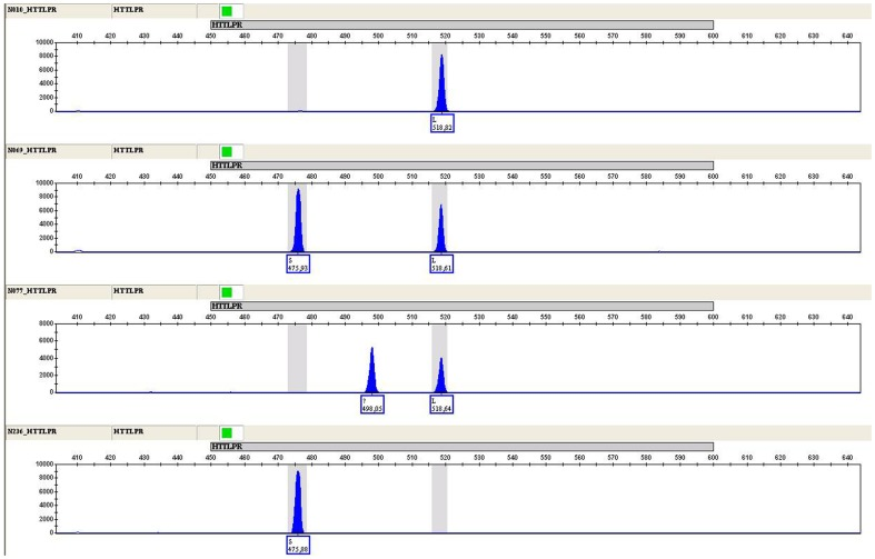 Electropherogram of the 5-HTTLPR polymorphism typed by capillary electrophoresis in four different samples. From top to bottom: L-allele homozygosity; S/L heterozygosity; L-allele heterozygosity and intermediate form; S-allele homozygosity.