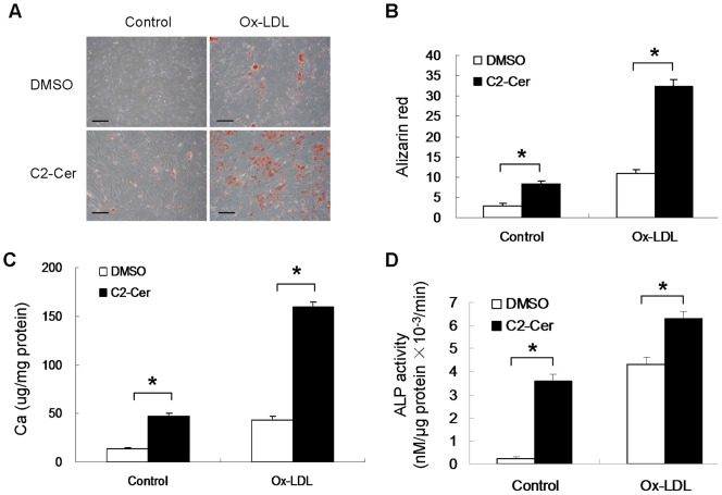 Ox-LDL-induced VSMC calcification was enhanced by ceramide treatment. Cells were treated with 50 µg/ml Ox-LDL alone or 50 µg/ml Ox-LDL in the presence of 5 µM C2-ceramide for 7 days (n = 3). ( A ) Cells were stained with alizarin red (bar = 200 µm). ( B ) Quantification of mineral deposition was performed. ( C ) The calcium content was measured using ocresolphthalein complexone method. ( D ) ALP activity was measured by spectrophotometry. *p