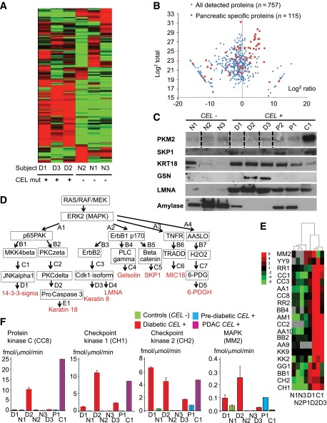"""The identification of a patient-specific protein signature in pancreatic juice. Protein quantitation was performed using isobaric labeling with TMT and LC-MS/MS analysis on an LTQ-Orbitrap Velos mass spectrometer. A : An unsupervised clustering analysis identified clearly different expression patterns in CEL -mutation carriers compared with controls with analyses performed by an investigator (F.M.) blinded to the samples. B : Log 2 plot of secretin-stimulated duodenal protein abundances and ratios of levels in the three CEL -mutation carriers compared with the three controls. Note the lack of skewed distribution of pancreatic proteins in the log 2 plot, indicating that a majority of the proteins had been detected despite degradation. Using """"no-enzyme""""-specific searches, we identified 757 proteins in the secretin-stimulated duodenal juice, of which 115 proteins were pancreatic specific based on a previous report ( 17 ). C : Immunoblot validation examples of proteins identified with stippled lines indicate gel crops. In addition to the three diabetic CEL -mutation carriers (D1, D2, D3) and three nonfamily controls (N1, N2, N3), we also added secretin-stimulated duodenal juice samples from two prediabetic CEL -mutation carriers (P1, P2) and from the CEL -mutation carrier with the KRAS -mutated pancreatic ductal adenocarcinoma (C1). D : Visualization of the MAPK-targeted proteins identified by Biobase ExPlain 3.0 tool and alphanumeric codes referring to PubMed identification in Supplementary Table 3 . E : Heat map demonstrating differential clustering of kinase activities in the secretin-stimulated duodenal juice and pancreatic tissue of CEL -mutation carriers and controls. F : Vertical bar graphs showing significant differences in kinase activities for PKC, CH1, and CH2 in secretin-stimulated duodenal juice. The multiplexed kinase activity assay allows the absolute quantitation of kinase activities by measuring the amount of phosphorylation of 60 peptide substrates wit"""
