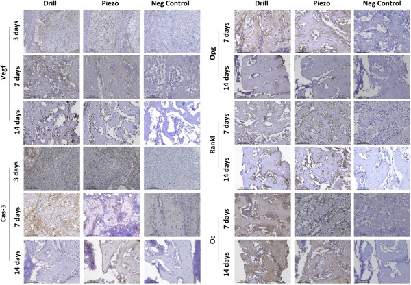 Immunolabeling of early healing and bone remodeling markers. Left: Immunolabeling of Vascular endothelial growth factor (VEGF) and Caspase-3 (CAS-3) of tissue sections obtained at 3, 7, and 14 days after drilling (Drill) or piezosuregry (Piezo). Right: Immunolabeling of Osteoprotegerin (OPG), Receptor activator of nuclear factor kappa-B ligand (RANKL), and Osteocalcin (OC) of tissue sections obtained at 7 and 14 days after drilling (Drill) or piezosuregry (Piezo). Sections were stained with the chromogen substrate diaminobenzidine and counterstained with hematoxylin. Staining scores were categorized as negative, positive (brown-yellow color), superpositive (brown color), and hyperpositive (intense brown color) (see Methods). Left (VEGF and CAS-3): at 3 days, only a few posivite regions in brown-yellow color are observed in both groups. Hyperpositive immunolabeling (intense brown color) is visible only at 7 days. At 14 days, the expression of VEGF and CAS-3 tended to be positive (brown-yellow) and superpositive (brown color). Right (OPG, RANKL and OC): at 7 days, hyperpositive immunostaining (intense brown color) is observed for OPG and OC, whereas superpositive immunoreaction (brown color) was detected for RANKL. At 14 days postsurgery, superpositive labeling (brown color) is observed for all three markers. In the negative controls no immunopositivity was detected at all times.