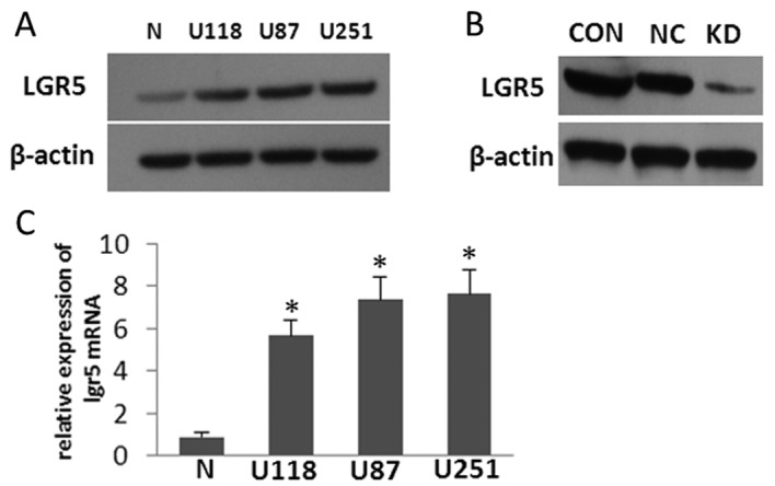 LGR5 is overexpressed in glioma cell lines, and LGR5 interference reduces its expression in U87 cells. (A) Protein levels in normal cultured primary astrocytes and in U118, U87 and U251 glioma cells as assessed by western blot analysis. (B) RNA interference reduced the expression of LGR5 in U87 cells as assessed by western blot analysis. Con, parental U87 cells; NC, negative control; KD, LGR5 knockdown cells. (C) mRNA levels in normal cultured primary astrocytes and in U118, U87 and U251 glioma cells as assessed by qRT-PCR analysis. N, normal cultured primary astrocytes.