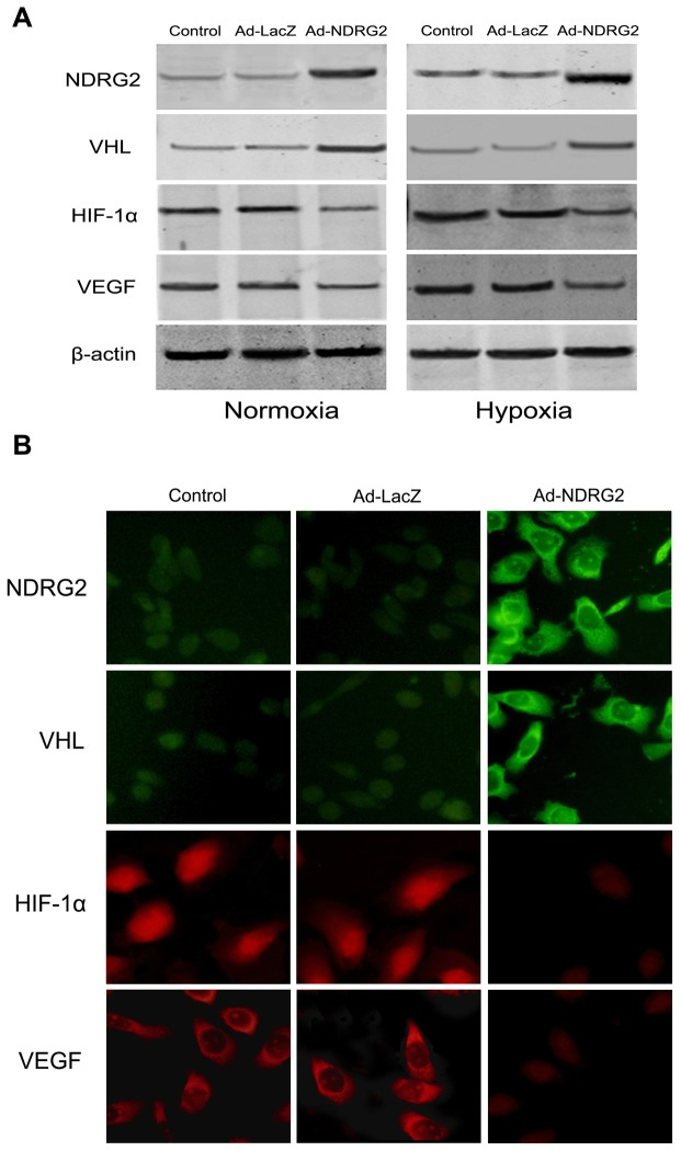 Effect of NDRG2 on the expression of pVHL, HIF-1α and VEGF under normoxia or hypoxia. (A) 786-O, Ad-LacZ-786-O and Ad-NDRG2-786-O cells were incubated under normoxia and hypoxia for 24 h. After incubation, the cells were analyzed by western blot assay. β-actin protein levels were used as a loading control. (B) After infection of 786-O cells with 40 MOI Ad-NDRG2 under normoxia for 24 h, protein levels of NDRG2, pVHL, HIF-1α and VEGF in the cells were measured using immunofluorescence assay (400× magnification).