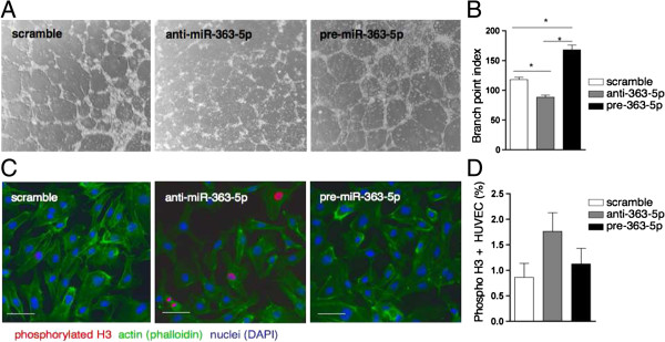 Effect of miR-363-5p levels in EC properties. (A) Tube formation assay to measure angiogenesis activity in HUVEC 48 h post-transfection with anti-miR-363-5p, pre-miR-363-5p and scramble control. Representative phase contrast (20X magnification) and (B) quantification by branch point index. Data are means ± s.e.m. of the two replicates from two independent experiments. * P ≤ 0.05 by Student's test. (C) Proliferation assessed by positive staining for phosphorylated histone H3 (red) 48 h post-transfection with anti-miR-363-5p, pre-miR-363-5p and scramble control. Actin cytoskeleton was stained with phalloidin (green), nuclei, DAPI (blue). Scale bars, 10 μm. (D) Quantification represents the average ± s.e.m. of three independent transfection experiments.