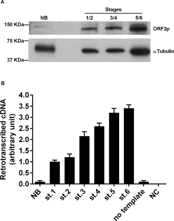 RT activity in murine breast cancer tissues A. Western blot analysis of ORF2p (upper panel) and alpha-tubulin (lower panel) in tissue extracts from normal breast (NB) and breast cancer (stages 1+2, 3+4, and 5+6 were pooled). B. RT activity functional assay after incubation of MS2 phage RNA with extracts from breast carcinoma tissues. Histograms represent the retrotranscribed cDNA yield from each reaction; means and SD values from three independent assays are expressed in arbitrary units.