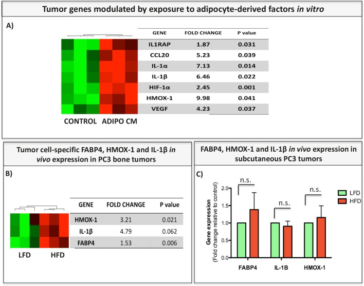 FABP4, IL-1β, and HMOX-1 are expressed in tumor cells exposed to adipocyte-derived factors in vitro and in bone tumors in vivo A: Genes upregulated in PC3 cells exposed to Adipo CM in vitro as detected by Taqman RT PCR Human Inflammation Array (Life Technologies). Data are normalized to HPRT1 and GUSB and shown as fold increase relative to control. B, C: Taqman RT-PCR of FABP4, IL-1β, and HMOX-1 in PC3 bone tumors (B) and PC3 subcutaneous tumors (C) from LFD and HFD mice. Data are normalized to HPRT1 and GUSB and shown as fold increase relative to LFD.