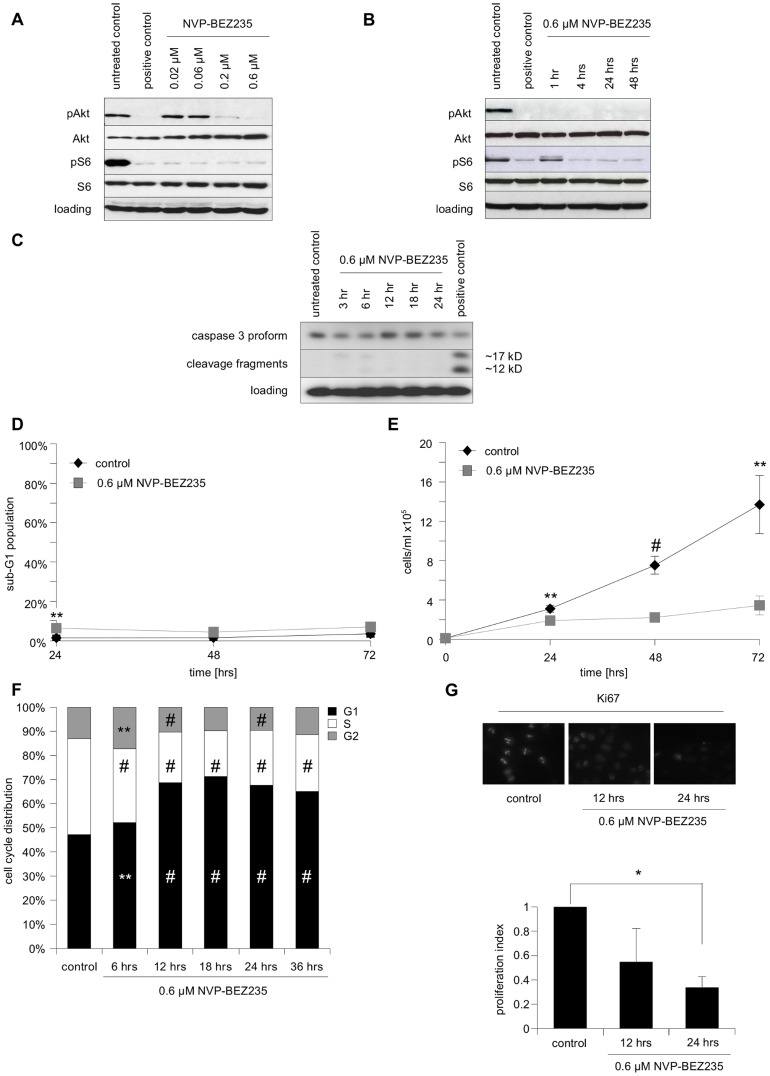 The effects of the PI3K/mTOR inhibitor NVP-BEZ235 on SHEP NB cells. A Cells were either left untreated, treated for 24 µM PI-103, a well-characterized pan-PI3K inhibitor used as positive control, or the indicated concentrations of NVP-BEZ235. Protein expression levels and phosphorylation status of Akt and S6 ribosomal protein served as surrogate read-outs for PI3K and mTOR activity, respectively, and were analyzed by Western blotting, β-actin served as loading control. B Cells were either left untreated, treated for 24 hrs with either 0.6 µM PI-103 as positive control, or 0.6 µM NVP-BEZ235 for the indicated lengths of time. Protein expression levels and phosphorylation status of Akt and S6 ribosomal protein were analyzed by Western blotting, β-actin served as loading control. C Cells were either left untreated, treated for indicated length of time with 0.6 µM NVP-BEZ235, or treated for 24 hrs with 0.2 µg/ml doxorubicin as positive control. Protein expression levels and cleavage of caspase-.3 protein were analyzed by Western blotting, β-actin served as loading control. D Cells were cultured either in the presence or absence of 0.6 µM of NVP-BEZ235 for 24, 48 and 72 hrs, followed by FACS analysis of the DNA fragmentation of propidium iodide-stained nuclei. The percentage of absolute DNA fragmentation is shown as readout of apoptosis. E 24, 48 and 72 hrs after treatment with 0.6 µM NVP-BEZ235 total cell numbers of treated and untreated cells were counted. F Cell cycle distribution (untreated control and samples treated with 0.6 µM of NVP-BEZ235) was determined after indicated times by FACS analysis of propidium iodide-stained nuclei. G Either untreated controls, or cells treated for 12 and 24 hrs with 0.6 µM NVP-BEZ235 were stained for Ki67 protein expression and evaluated by immunofluorescent microscopy. In A–C and F a representative result of two independent experiments is depicted, while in D and E mean+s.e.m. values of at least three independent experiments carried out in triplicate are shown. Shown in F is the mean of three independent experiments carried out in triplicate, in G the mean+SD of three independent experiments. Statistical analysis was carried out by two-sided Student's t -test; * P-value