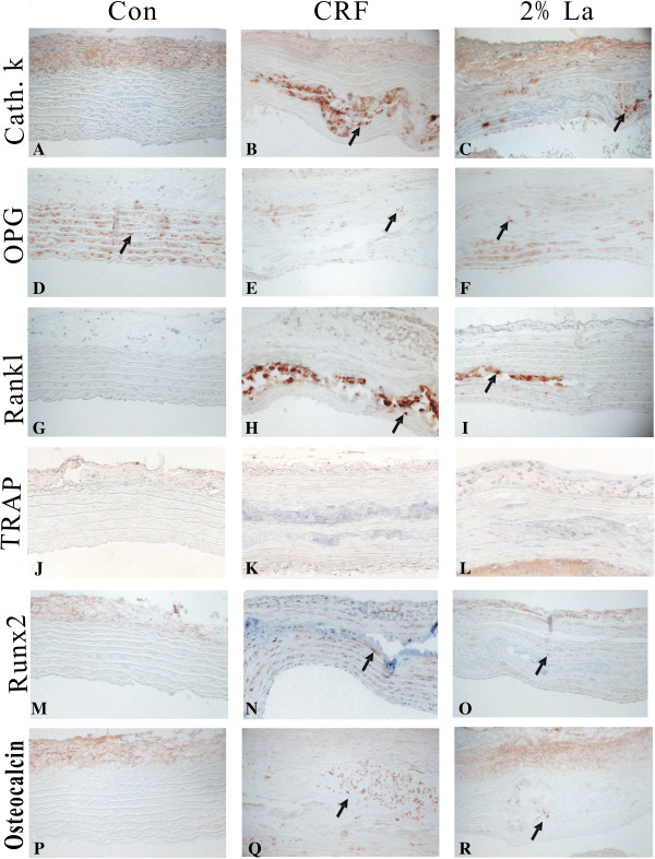 Aorta for evidence of VSMC phenotype change by performing immunochemistry. Expression of CathepsinK (A-C) , OPG (D-F) , RANKL (G-I) , TRAP (J-L) , Runx2 (M-O) , and Osteocalcin (P-R) were detected in the aortic tunica media of normal, CRF and 2%La treatment rats. Arrows indicate positively stained action. All sections were of the thoracic aorta region.