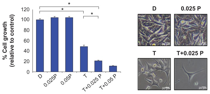 E ffect of T-oligo with or without PVBLG on growth and viability of MM-AN cells. First, 5,000 MM-AN cells/well were plated (n=6) in Minimum Essential Medium supplemented with 10% fetal bovine serum. After 24 hours, the cells were treated for 96 hours with 20 μM T-oligo with or without PVBLG at concentrations found to be nontoxic (0.025–0.05 mg/mL). Cell viability was determined using the MTT colorimetric dye reduction assay and percent cell viability was determined relative to the control. T-oligo inhibited growth by 51% while T-oligo with PVBLG (0.025–0.05 mg/mL) inhibited growth by 78%–89%. PVBLG alone had no effect at the tested concentrations. * P ,0.001. Abbreviations: D, diluent; P, PVBLG; T, T-oligo; TOP complex, T-oligo and PVBLG nanocomplex.