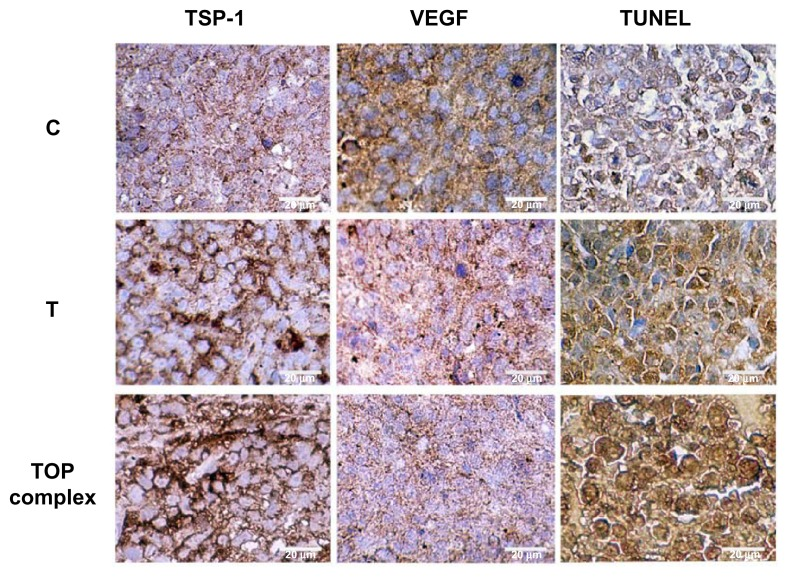 E nhanced antitumor effects of the TOP complex in xenograft tumors of MM-AN melanoma cells. First, 2.5×10 6 MM-AN cells were injected into the flank of each immunodeficient mouse (n=10). After 24 hours, the mice were treated daily with diluent, T-oligo (52 nmol), or TOP complex (52 nmol T-oligo and 0.025 mg/mL PVBLG) intravenously for 3 weeks. Xenograft tumors were resected on day 21 and subjected to immunohistochemistry for VEGF and TSP-1. Apoptosis was evaluated by TUNEL assay, which was increased in tumors treated with the TOP complex compared with T-oligo. Immunohistochemical staining showed enhanced expression of TSP-1 and decreased expression of VEGF in mice treated with the TOP complex as compared with T-oligo alone. Abbreviations: C, complement ary oligonucleotide (C-oligo); T, T-oligo; T + P, TOP complex; TOP complex, T-oligo and PVBLG nanocomplex; TSP-1, thrombospondin 1; VEGF, vascular endothelial growth factor; TUNEL, terminal deoxynucleotidyl transferase dUTP nick end labeling.