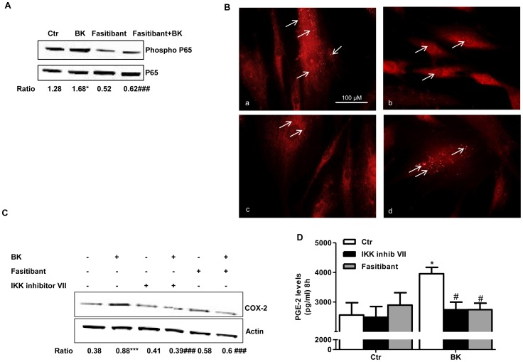 BK stimulates translocation/phosphorylation of NF-κB in circulating proangiogenic cells. (A) p65 (NF-κB) phosphorylation following exposure to BK (1 µM, 15 min) in presence/absence of fasitibant (0.1 µM). Gel are representative of three experiments. The ratio between p-p65 over p65 is reported. *p