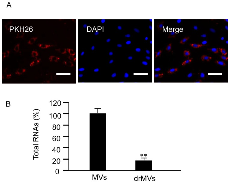 The incorporation of EPC-MVs with H9c2 and the RNAs depletion from EPC-MVs. (A) Representative images showing that EPC-MVs merge with H9c2 CMs. MVs were labeled with PKH26 (red). Nucleuses were labeled with DAPI (blue). Scale bar, 100 µm. (B) Summarized data of total RNAs in MVs and rdMVs. RNase treatment is effective in depleting RNAs from EPC-MVs. ** P