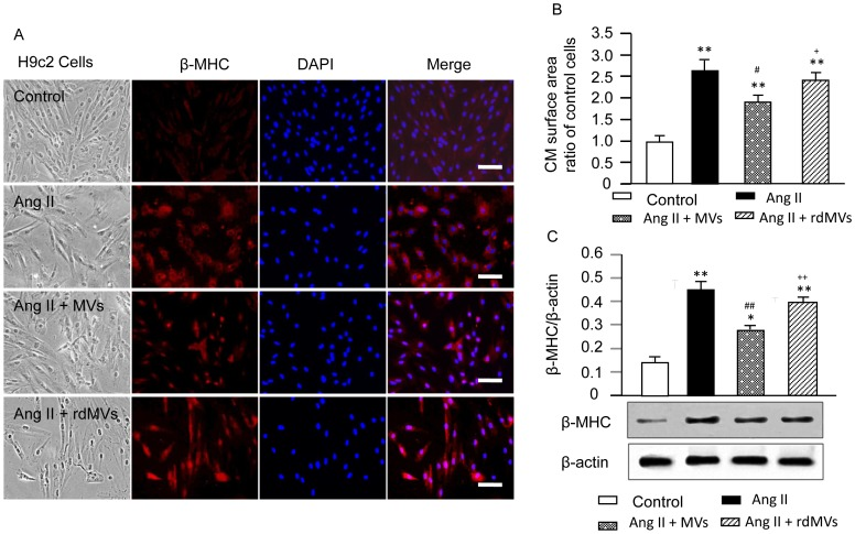 Effects of EPC-MVs on Ang II-induced CM hypertrophy and β-MHC protein expression. (A) Representative immunohistochemistry images of β-MHC expression in H9c2 CMs in each group. H9c2 CMs were labeled with β-MHC antibody (red), and DAPI (blue, for nucleus). Scale bar, 100 µm. (B) Summarized data of surface areas of CMs in each group. (C) Western blot bands and graphs showing the β-MHC expression in H9c2 CMs in different treatment groups. The molecular weights are 223 kDa for β-MHC and 43 kDa for β-actin. * P