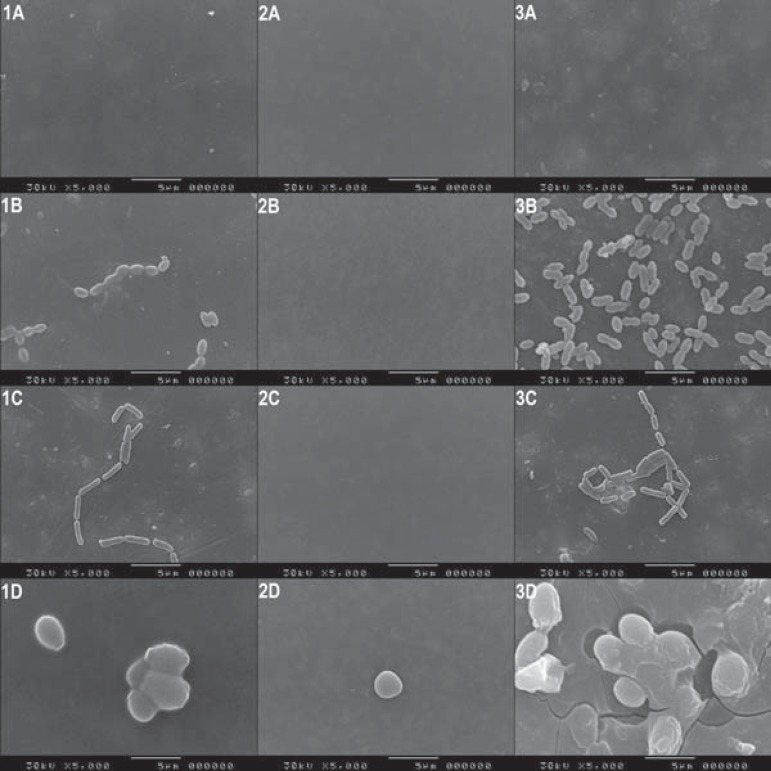 Scanning electron microscopy photomicrographs showing the surfaces of tested materials: (1) XT Group, (2) PLUS Group and (3) FUJI Group (columns); (A) Baseline, negative control, (B) <t>S.mutans</t> , (C) <t>L.casei</t> and (D) C.albicans (lines)