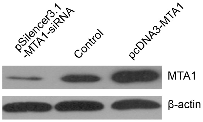 Western blot analysis of  MTA1  expression after transfection with pcDNA3- MTA1  and pSilencer3.1- MTA1 -siRNA. pcDNA3- MTA1  and  MTA1 -siRNA were transfected into the cell line with Lipofectamine 2000. Whole protein was extracted and loaded for SDS-PAGE separation. The protein was transferred to a nitrocellulose membrane and pcDNA3- MTA1  increased  MTA1  expression and  MTA1 -siRNA greatly decreased  MTA1  levels.  MTA1 , metastasis-associated gene 1.