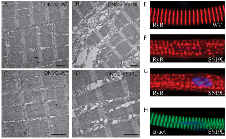 T-tubule and sarcoplasmic reticulum abnormalities in DNM2-S619L larval muscle. (A–D) Electron micrographs of longitudinal sections through zebrafish muscle at 3 dpf. (A,C) Muscle from DNM2-WT larvae shows the typical sarcomere striations of vertebrate striated muscle. (B,D) Muscle from DNM2-S619L larvae demonstrates extensive swelling and vacuolization in the region of the SR and T-tubules. Scale bars: 1 μm. (E-H) Confocal micrographs of isolated myofibers subjected to immunofluorescence analysis. (E) Wild-type (WT) myofiber showing the expected pattern of <t>RyR1</t> staining. (F,G) RyR1 expression is irregular in DNM2-S619L myofibers, and is often found aggregated. (H) α-actinin staining was normal, indicating that other elements of the muscle structure in S619L myofibers are not disturbed.