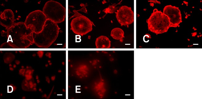 Suppressive effects of OPG on F-actin ring formation in duck embryo osteoclasts. Duck embryo bone marrow cells were suspended in α-MEM with FBS (v/v 10%) and then seeded in 12-well culture plates. After incubating for 24 h, the α-MEM was replaced with serum-free medium containing M-CSF (25 ng/mL) and RANKL (30 ng/mL). The cells were cultured for up to 5 days. Next, 0, 10, 20, 50, and 100 ng/mL OPG were added to the different groups of cells in the presence of M-CSF and RANKL. The cells were incubated for another 3 days. At the end of the cultivation period, the cells were fixed and stained for TRITC-phalloidin. The F-actin rings were observed using an inverted phase contrast fluorescence microscope with appropriate filters. (A) control, (B) 10 ng/mL OPG, (C) 20 ng/mL OPG, (D) 50 ng/mL OPG, (E) 100 ng/mL OPG. ×400. Scale bars = 100 µm (A~E).