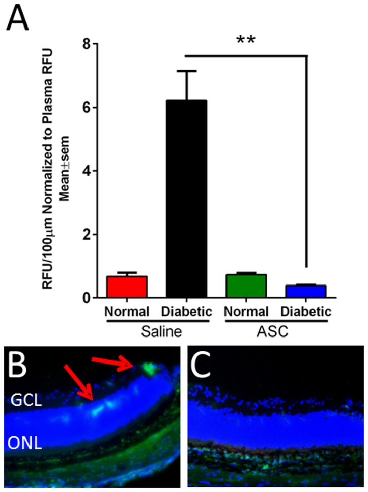 Increase in vascular permeability in diabetic athymic nude rats is alleviated with intravitreal ASC injection. (A) Two months post diabetes induction or age matched normal rats were injected intravitreally with saline (n = 8–10/group) or ASC (n = 6–8/group; 250,000 cells in 2 µL of saline). At day 7, rats were injected with 100 mg/kg of FITC-BSA via tail vein. After 1hr, rats were euthanized and perfused with 4% paraformaldehyde, and eyes enucleated and embedded. About ten 10 µm sections of equal area were analyzed for FITC fluorescence and normalized to total plasma fluorescence. A significant (**p