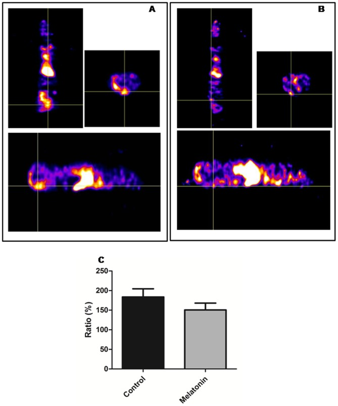 SPECT analysis of in vivo accumulation of Tc-99m-HYNIC-VEGF-c. VEGF-c (which targets both VEGFR2 and VEGFR3) was tagged with HYNIC chelators and then labeled with Tc-99m and injected intravenously in melatonin and vehicle treated mice. One hour after injection, SPECT images were obtained using dedicated animal scanner. Vehicle treated mice showed increased accumulation of Tc-99m-HYNIC-VEGF-c in the mammary tumor (A, Intersection of lines indicate the tumor, with a volume of 865.69 mm 3 at the 21th day) compared to that of melatonin treated mammary tumors (B, Intersection of lines indicate the tumor, with a volume of 130.69 mm 3 at the 21th day) C. Semi-quantitative analysis of total radioactivity normalized to contralateral muscles showing the intensity of radioactivity in the vehicle and melatonin treated animals.