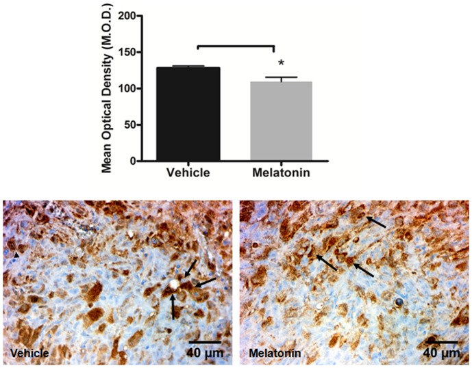 Immunohistochemistry staining with VEGFR2 (arrows) in vehicle treated and melatonin treated tumors. Images were taken with 40× magnification. A significant decrease was observed at the tumor in melatonin treated tumors compared to vehicle treated tumors (*p