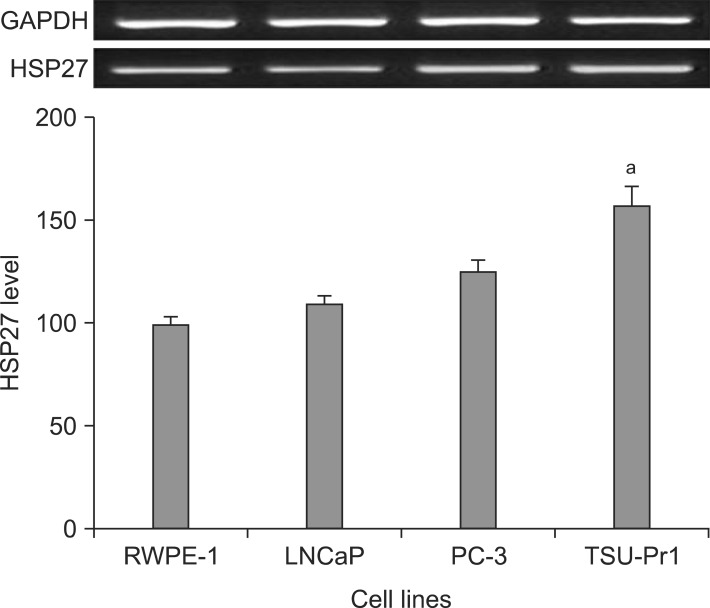 HSP27 reverse transcription polymerase chain reaction results according to the cell type (RWPE-1, LNCaP, PC-3, and TSU-Pr1). The density of HSP27 mRNA expression was shown to be higher than the low grade malignant cell line. Values are mean±standard error of mean. HSP27: heat shock protein 27, GAPDH: glyceraldehyde-3-phosphate dehydrogenase. a p