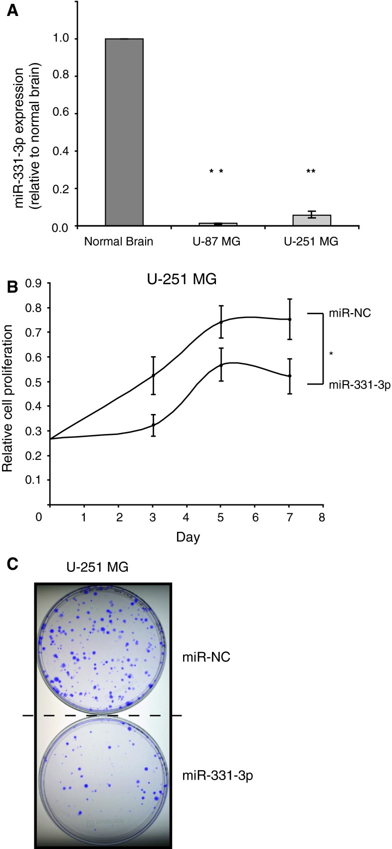 miR-331-3p is down regulated in GBM cell lines compared to normal brain and inhibits cell proliferation and clonogenicity. a TaqMan <t>RT-qPCR</t> analysis of miR-331-3p expression in U-87 MG and U-251 MG cells relative to normal brain <t>RNA.</t> b Cell titre assay of U-251 MG cell proliferation following transient transfection with either miR-331-3p or negative control miRNA (miR-NC). c Clonogenicity assay of U-251 MG cells 12 days following transient transfection with either miR-331-3p or miR-NC. Error bars represent standard deviations; * p