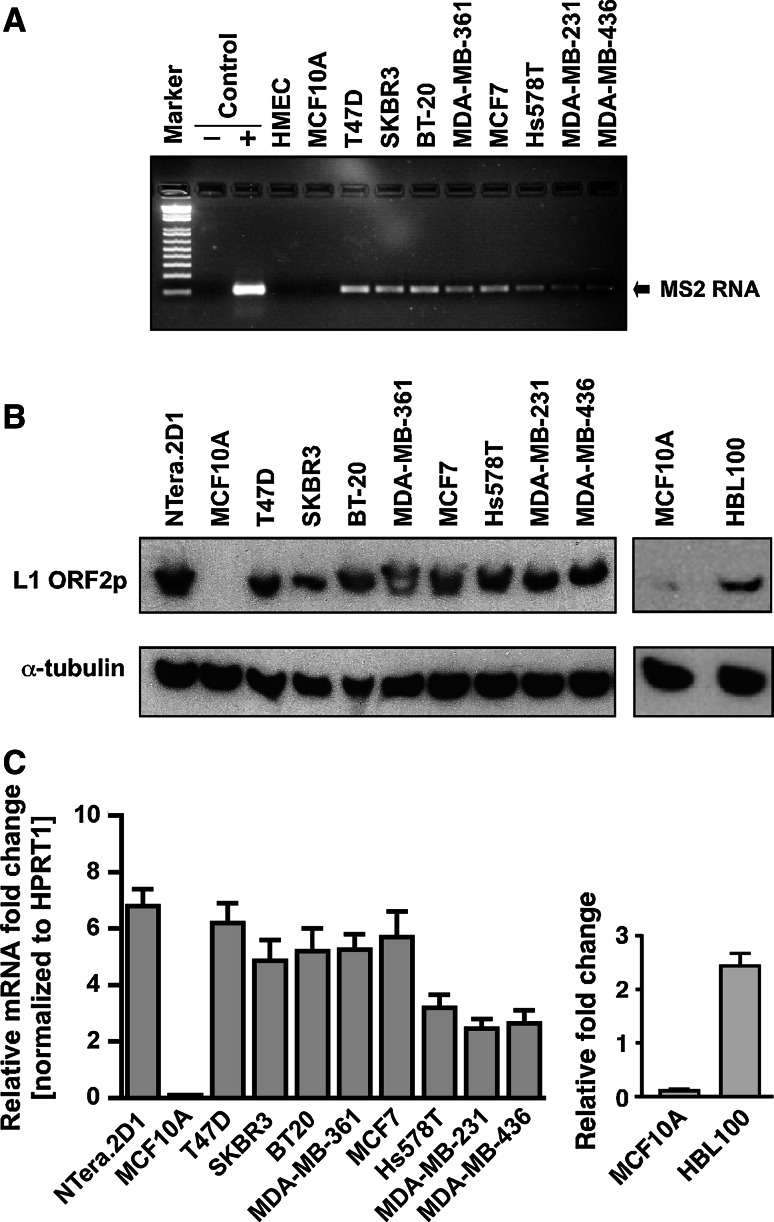 L1-encoded RT activity in breast cancer cells. a Endogenous RT activity was detected after incubation of synthetic MS2 phage RNA with cell extracts from a panel of breast cancer cells. Control reactions were set up by omitting cell extract ( negative control ) or adding cell extracts from NTera.2D1 human embryonic carcinoma cells ( positive control ). The PCR product of 110 bp (corresponding to the reverse-transcribed MS2 cDNA) is shown. Marker, 1 kb-plus DNA marker. b The L1-encoded ORF2p, which contains the RT enzyme, was detected by western blotting of whole-cell lysates from normal and a panel of breast cancer cells. NTera.2D1 were used as positive controls. For protein normalization, α-tubulin was used as a loading control. c The L1 ORF2 mRNAs derived from L1 expression were quantified by qRT-PCR with primer specific for the ORF2 sequence. The data are shown as fold change in each breast cancer panel cells compared to normal MCF10A after normalization to the HPRT1 housekeeping gene. Each point represents the average of three independent experiments, with each experiment performed in triplicate. Error bars indicate SD ( n = 3)