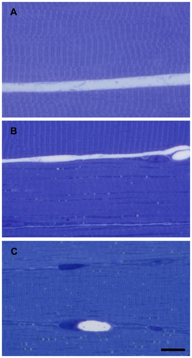 Morphology of muscle fibers in control animals and after 8 and 9 hours of ischemia. Normal morphology of muscle fibers, semithin sections from control muscle (A). After 8 hours of ischemia (B), mostly mitochondria-rich fibers seemed to be affected, while other fibers appeared to be normal. After 9 hours of ischemia (C), almost all fibers showed mild or moderate degree of damage. Toluidine blue staining. Bar: 20 µm.