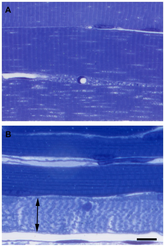 Morphological signs of ischemic-reperfusion damage of muscle fibers as demonstrated on semithin sections. Marked morphological changes were visible in all fibers even after 8(A), while after 9 hours of ischemia followed by 2 hours of reperfusion (B) necrosis (double arrow) was already evident in the majority of the fibers. Toluidine blue staining. Bar: 20 µm.