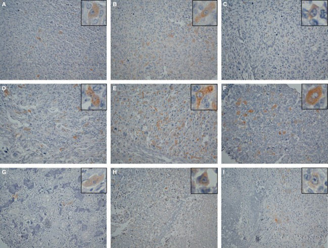 Immunohistochemical analysis by MsMab-1 against tissue microarray of osteosarcomas. Osteosarcoma tissue microarray was stained with MsMab-1 followed by LSAB kit. Color was developed using DAB, and was counterstained with hematoxylin. Typical results were shown: (A) No. 3, (B) No. 5, (C) No. 13, (D) No. 15, (E) No. 18, (F) No. 24, (G) No. 26, (H) No. 31, and (I) No. 32. Insets show that MsMab-1 stained cytoplasm (A–I). Magnification: 200×. MsMab, multi-specific anti-mutated IDH1/2 mAb; DAB, <t>3,3-diaminobenzidine</t> <t>tetrahydrochloride.</t>