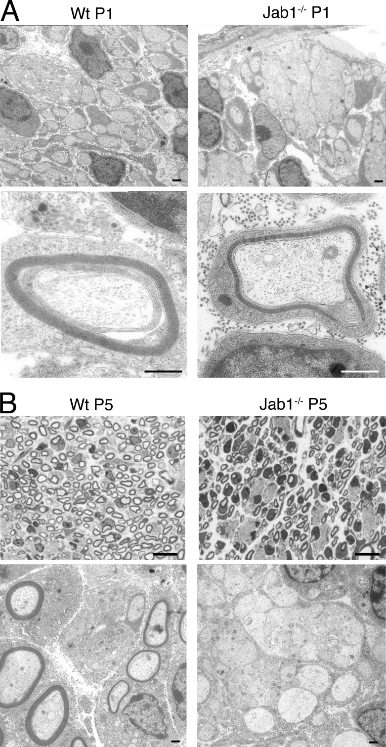 Axonal sorting defect is present since early development. (A) Electron micrographs of sciatic nerve from P1 WT and Jab1 −/− mice showing bundles of unsorted axons and myelinated fibers. (B) Semithin and ultrathin sections of sciatic nerve from P5 WT and Jab1 −/− mice showing bundles of unsorted axons only in Jab1 −/− nerves. Bars: (A and B [bottom]) 0.5 µm; (B, top) 10 µm.