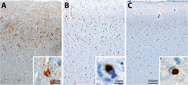 Photomicrographs of the posterior cingulate cortex (PC) in Alzheimer's disease (AD, A) and the anterior cingulate cortex (AC) in FTLD-tau (B) and FTLD-TDP (C). Neuronal loss is obvious in these regions, with more severe degeneration observed in FTLD-tau (B) , and a similar extent of degeneration observed in FTLD-TDP (C) and AD (A) . Comparable levels of tau-immunopositivity in neurofibrillary tangles (A , inset ) and Pick bodies (B , inset ) was observed in PC in AD (A) and in AC in FTLD-tau (B) . Sparse numbers of TDP-43 inclusions (C , inset ) were found in cases with FTLD-TDP (C) .
