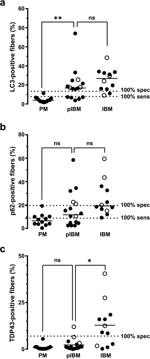 Quantification of LC3, p62, and TDP-43 positive fibers in the pIBM group. The percentage of LC3-positive fibers (a) was significantly higher in the pIBM group than in the PM group, but similar to the IBM group. With p62 (b) , there was no statistically significant difference between the pIBM group and either the PM or IBM group. The percentage of TDP-43-positive fibers (c) was significantly lower in the pIBM group than in the IBM group, but similar to the PM group. Each subject is represented with a symbol; the open symbols indicate subjects with known IBM clinical presentation. The unbroken lines designate group medians, while the dotted lines mark 100% sensitivity and 100% specificity cutoffs for each marker (derived from the ROC analysis shown in Figure 2 ). **, p