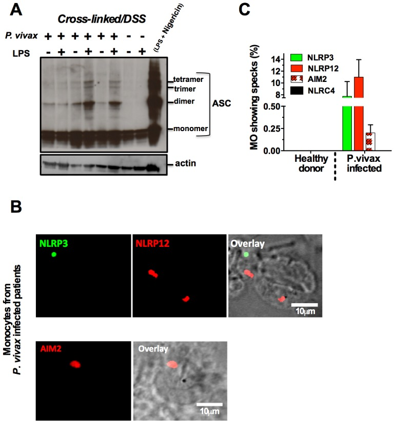 NLRP3/NLRP12 containing inflammasomes and caspase-1 activation in PBMCs from P. vivax malaria patients. ( A ) PBMCs derived from P. vivax malaria patients and healthy donors were lysed, cross-linked by treatment with disuccinimidyl suberate [70] , and ASC oligomerization assessed by Western blot analysis. PBMCs from a healthy donor stimulated with LPS and nigericin were used as positive control. . ( B ) NLRP3, NLRP12 and AIM2 containing inflammasomes (specks) in monocytes from P. vivax malaria patients were visualized in a confocal microscope. ( C ) The bar graphs show the frequency of specks in monocytes derived from P. vivax malaria patients. We saw no specks on cells from healthy donors or cells from malaria patients incubated with the secondary antibody only. See also Figure S6 .
