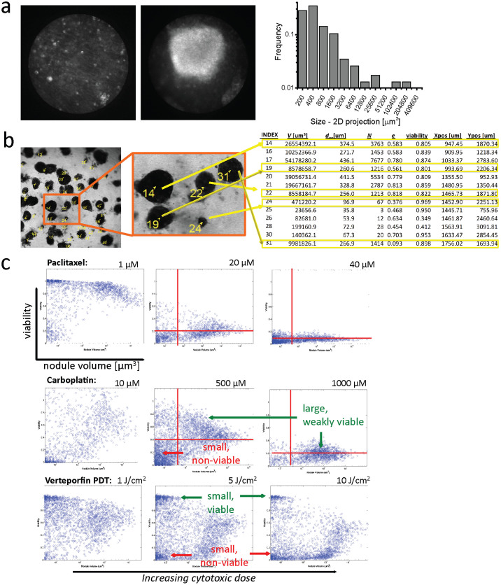 Size heterogeneity in vitro and in vivo and size-dependent therapeutic response. (a): In vivo nodule size heterogeneity from representative fluorescent microendoscope fields of xenograft implanatation of ovarian cancer cells, which resembles size distribution of the same cells grown in vitro. Endoscope fields are 800 μm in diameter. (b): A representation of our use of segmentation in 3D culture image data to identify individual nodules from the brightfield channel to generate a mask for computation of multiple readouts (shown in truncated form) for each individual nodule. In (c), viability-volume scatter plots output by qVISTA code showing the rescaled viability of each nodule with respect to its volume, for thousands of nodules in each treatment group, for each treatment. The vertical spread reflects dose response heterogeneity and for given a range of sizes. Probing size-dependent response in this manner reveals, for example, that the only nodules that are completely responsive to carboplatin are the smallest volume nodules while the largest remain weakly viable even at a 1000 μM (LD 80 ) dose. Response to paclitaxel is the most homogeneous and size-independent of therapies evaluated. Etoposide-treated cultures exhibit a broad spread of viabilities over a broad spread of nodule sizes, while verteporfin-PDT treatment induces a pronounced bi-modal response with simultaneously emergent populations of small nodules (1–10 cells) that are almost completely viable and almost completely non-viable.