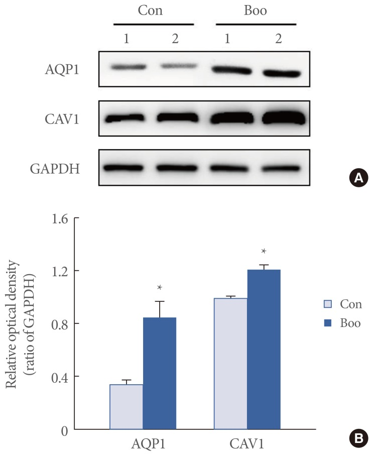 (A) Immunoblotting for aquaporin 1 (AQP1) and caveolin 1 (CAV1) in the rat urinary bladder. The anti-AQP1 antibody recognizes the 27-29 kDa bands that correspond to glycosylated AQP1. The anti-CAV1 antibody recognizes a 22 kDa band. The anti-GAPDH antibody recognizes a 42 kDa band. The expression of the AQP1 and CAV1 proteins was significantly increased in the bladder outlet obstruction (BOO) group. (B) The lower panel denotes the means±standard deviation of 10 experiments for each condition, as determined by densitometry relative to GAPDH. Con, control; GAPDH, glyceraldehyde 3-phosphate dehydrogenase. * P