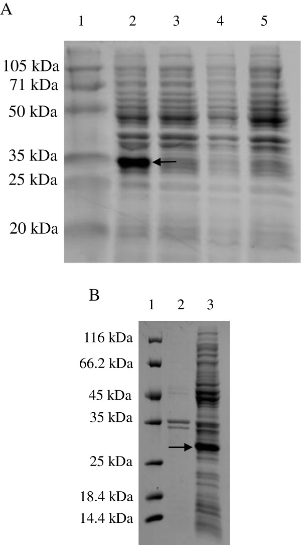 Expression of recombinant gametocyte protein EnGAM22. (A) Analysis of the expressed protein by SDS-PAGE. Protein marker (lane 1), the recombinant bacterial <t>BL21</t> containing recombinant expression vector induced by 1 mM IPTG (lane 2), the recombinant bacterial BL21 not induced by IPTG (lane3), the bacterial containing the wild type vector induced by IPTG (lane 4) and the bacterial BL21 induced by IPTG (lane 5). (B) The solubility analysis of recombinant protein. Protein marker (lane 1), supernatant of bacterial sonicates (lane 2) and sediments of bacterial sonicates (lane 3).