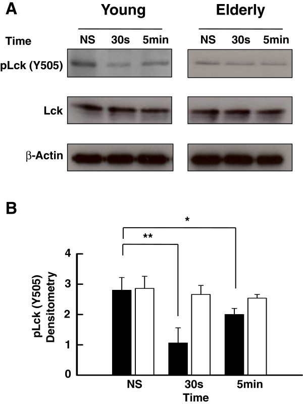 Western blot analysis of the levels of tyrosine-phosphorylated (Y505) Lck. (A) Purified T cells from young and elderly donors were left non-stimulated (NS) or exposed to a mixture of anti-CD3 (5 μg/ml) and anti-CD28 (5 μg/ml) mAbs for 30 s or 5 min, as indicated. Cell lysates were sized by SDS-PAGE under reducing conditions, electrotransfered to nitrocellulose membranes and proteins revealed using appropriate mAbs and the chemiluminescence technique. β-Actin was used as control of gel loading. The protein transferred to nitrocellulose membranes were stained with Ponceau to verify that similar amounts of protein had been loaded in each lane. (B) Time-related Y505-phosphorylated Lck analyzed by semi-quantitative densitometry and reported in arbitrary units in the case of stimulated (anti-CD3/anti-CD28, 5 μg/ml each) T cells of young (filled columns) and elderly (empty columns). Data are represented as the mean ± SD. Asterisks correspond to statistical significance (Student's t -test) for p