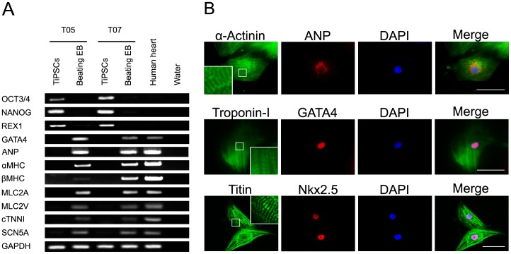 Cardiac-specific markers in TiPSC-CMs. (A) RT-PCR analyses of beating EBs derived from T05 and T07 for the pluripotent marker genes OCT3/4 , NANOG , and REX1 , the cardiac-related transcription factors GATA4 and MEF2C , and the cardiac-specific marker genes ANP , αMHC , βMHC , MLC2A , MLC2V , cTNNI , and SCN5A . (B) Immunofluorescence staining for cardiac-specific markers in cardiomyocytes derived from T07. Scale bar shows 50 µm.