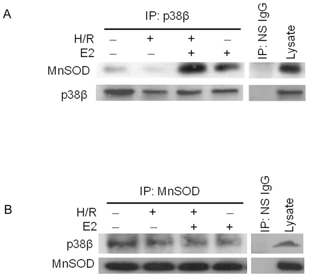 Physical association between p38β and MnSOD. ( A ) Endogenous p38β is immunoprecipitated (IP: p38β) from cardiomyocytes after H/R with or without E2 at 10 nM, and the p38β-containing immunocomplex blotted for MnSOD. A western blot of p38β protein is also shown as a loading control. Nonspecific IgG is used as a specificity control in place of antibody specific to p38β in immunoprecipitation (IP: NS IgG). ( B ) Endogenous MnSOD is immunoprecipitated (IP: MnSOD) from treated cardiomyocytes as indicated, then the MnSOD-containing immunocomplex is blotted for p38β. Nonspecific IgG is used as a specificity control in place of antibody specific to MnSOD in immunoprecipitation (IP: NS IgG).