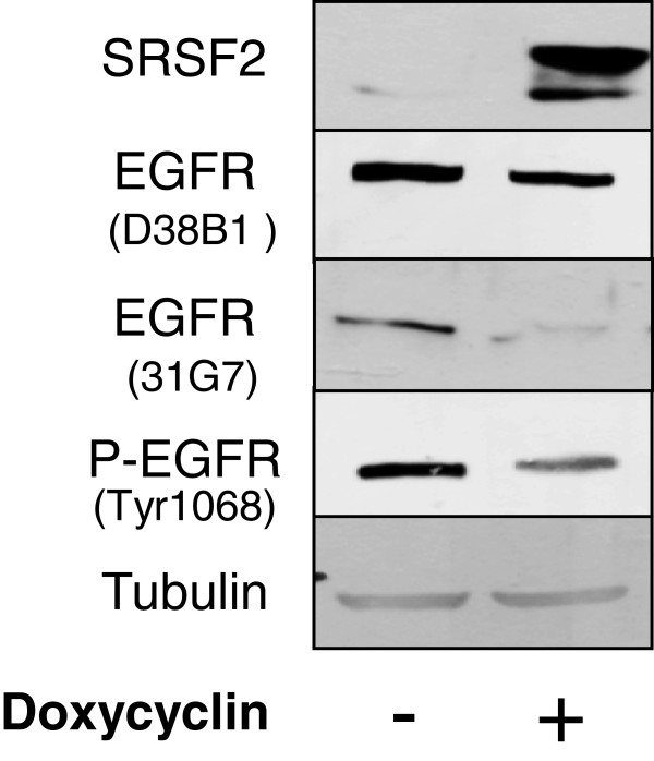 Western blot analysis of HER1/EGFR expression. HER1/EGFR and P-HER1/EGFR (Tyr1068) protein levels were analyzed in H358/Tet-On/SRSF2 inducible H358 clone by western blotting. Tubulin was used as a loading control.