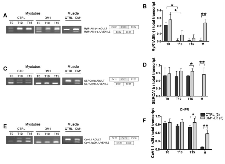 Splicing patterns of Ca 2+ channels and transporters in control and DM1 myotubes at 10 (T10) and 15 (T15) days of differentiation. ( A ) <t>RyR1</t> alternative splicing of fetal ASII(−) and ASII(+) isoforms and schematic representation of the ASII splicing isoforms of RyR1. ( B ) Quantification of RyR ASII(−) as compared to the total transcript. ( C ) SERCA1 alternative splicing of fetal SERCA1b and adult SERCA1a isoforms and schematic representation of the SERCA1 splicing isoforms. ( D ) Quantification of fetal SERCA1b as compared to the total transcript. ( E ) Cav1.1 alternative splicing of fetal Cav1.1Δ29 and adult Cav1.1 isoforms and schematic representation of the Cav1.1 splicing isoforms. ( F ) Quantification of fetal Cav1.1 Δ29 as compared to the total transcript. PCR products were separated in 3% agarose gel by electrophoresis. Data are the mean ± SD. * p