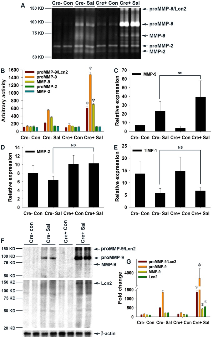 Elevated levels of Lcn2 in the colonic milieu of S. Typhimurium-infected mice stabilize proMMP-9. (A) The activities of MMP-9 and MMP-2 in gelatin-agarose-purified PBS (secreted) extracts of mock (Con)- or S. Typhimurium (SaI)-infected PPARγVillinCre+ (Cre+) or PPARγVillinCre− (Cre−) mouse colonic tissues were analyzed by gelatin zymography (6–8 mice per group). (B) Quantitation of gelatinolytic activities from the zymogram in panel A and from two other representative zymograms from independent experiments. Expression levels of MMP-9 (C), MMP-2 (D), and TIMP-1 (E) in the colons of the respective groups were measured by real-time PCR. (F) Protein levels of MMP-9 and Lcn2 in the colons of the respective mouse groups were assessed by immunoblotting using purified PBS extracts under non-reducing conditions. Flow-through from gelatin-agarose purification was probed for β-actin as a loading control. (G) Quantitation of changes in protein levels from the immunoblot in panel F and from another representative blot from independent experiments. Error bars = ± standard error of the mean. *p