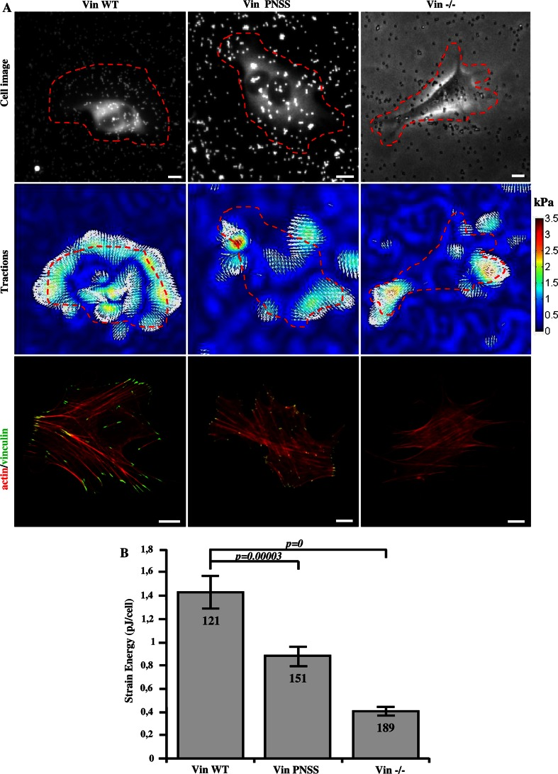 Disruption of CAS–vinculin interaction results in impaired traction forces generation. a Upper row cell image represented by GFP fluorescence (Vin Wt, Vin PNNS) and bright field image (Vin−/−) traction field ( middle row ), and fluorescent ( bottom row ) images of Vin−/− MEFs re-expressing different vinculin variants. Scale bar 10 μm. b The bar plot shows the strain energy generated by single cells (mean ± SE). Numbers in columns indicate number of analyzed cells