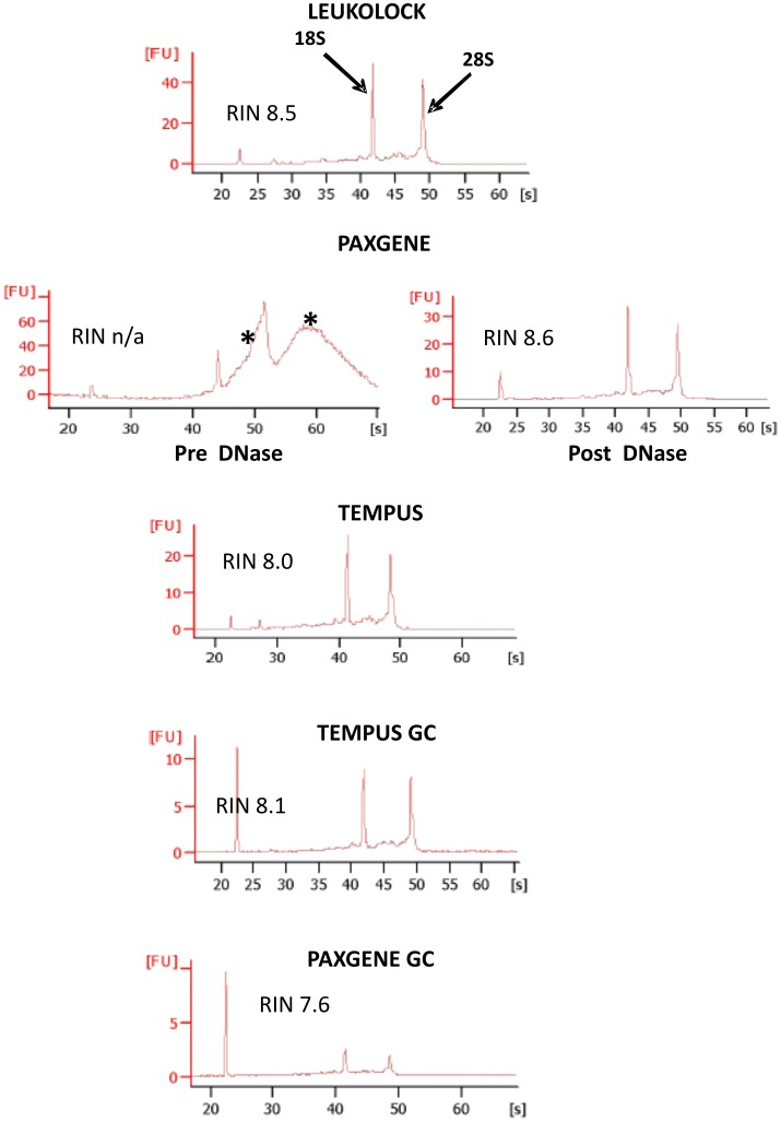 "Representative Bioanalyzer electropherograms after initial RNA extractions. High quality RNA (RIN > 7.0) can be extracted from all three methods. PAXGENE however requires a DNase step as traces from initial extractions show genomic DNA contamination at high molecular weights and as a ""shoulder"" to the 28S peak (indicated by asterisks). Good quality RNA can be detected after globin depletion with both TEM and PAXGENE. However, PAXGENE samples showed consistently lower concentration levels, as indicated by the smaller 18S and 28S peaks (FU, fluorescent units). Traces are representative and from single samples from each extraction method."