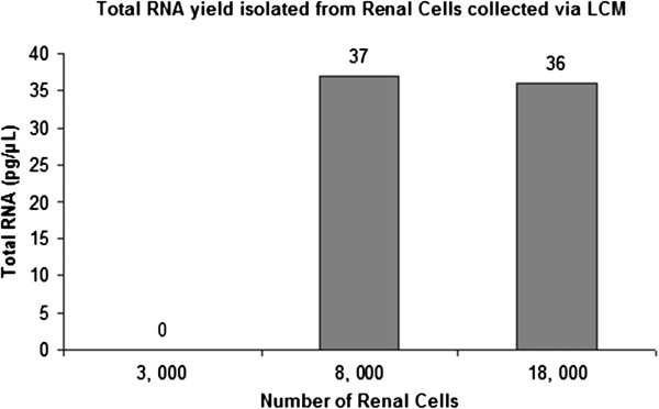 Total RNA concentrations from different number of renal cells. Total RNA concentrations were measured using Agilent 2100 <t>Bioanalyzer</t> with Agilent <t>RNA</t> 6000 Pico Kit. It was observed that 3000 renal cells yielded a total RNA concentration too low to be detected while 8000 and 18000 renal cells produced similar total RNA yields.